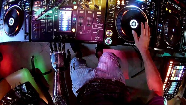 È italiano il DJ con la mano bionica